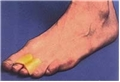 Digit Aid Middle Toe Splint