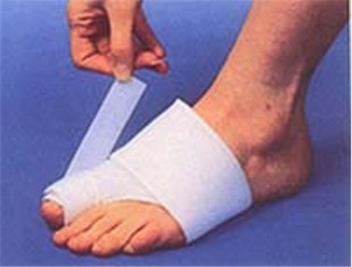 Jacoby Bunion Splint